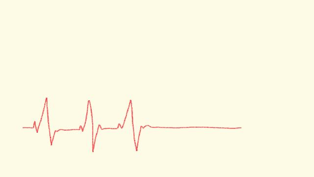 心電図2.png